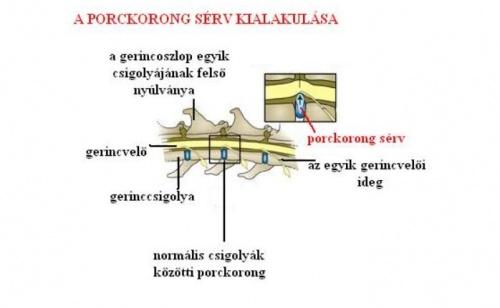 porckorongserv-kialakulasa